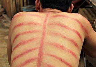 Endonezya'da garip bir tedavi yöntemi