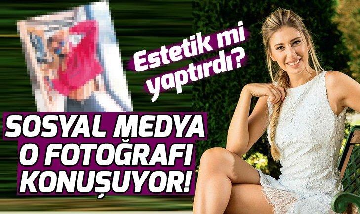 Sosyal medya Şeyma Subaşı'nın fotoğraflarını konuşuyor! Şeyma Subaşı estetik mi yaptırdı?