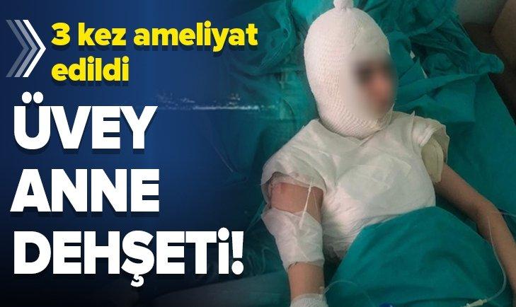 İSTANBUL'DA ÜVEY ANNE DEHŞETİ! KAYNAR SU DÖKTÜ