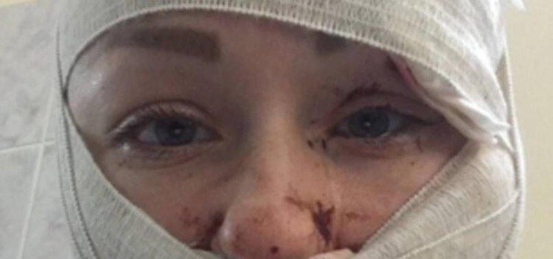 Mesut Öztürkmen boşanmak isteyen eşi Anna Butim'in yüzünü falçatayla bu hale getirdi