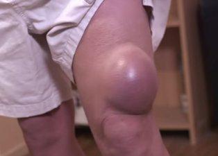 Bacağından çıkanlar görenleri hayrete düşürdü!