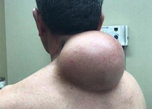 Boynu bu haldeydi! Acil ameliyata alındı...