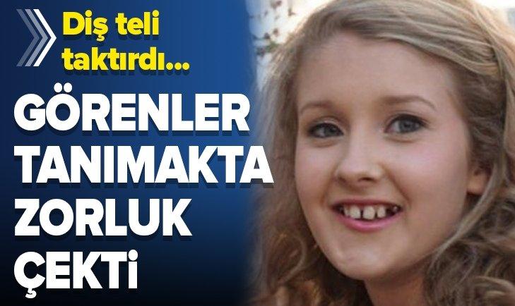 DİŞ TELİ TAKTIRDIKTAN SONRA TANINMAZ HALE GELDİ!