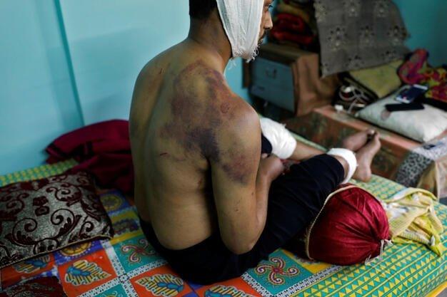 Hindistan'da öldüresiye dövülen Muhammed Zübeyir dehşet anlarını anlattı 2