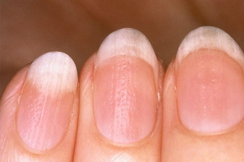 О чем говорит грибок ногтей на руках