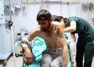 Tunceli'de ayının saldırısına uğrayan adam, ateş yakıp kendini kurtardı   Video
