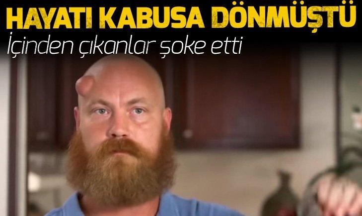 ALNINDAN ÇIKANLAR GÖRENLERİ ŞOKE ETTİ!
