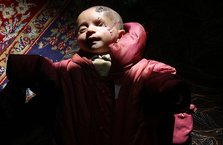 Suriye'de Doğu Gutalı Kerim bebeğin inanılmaz direnişi