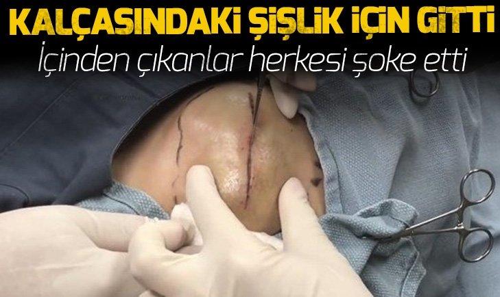 KALÇASINDAN ÇIKANLAR ŞOKE ETTİ!