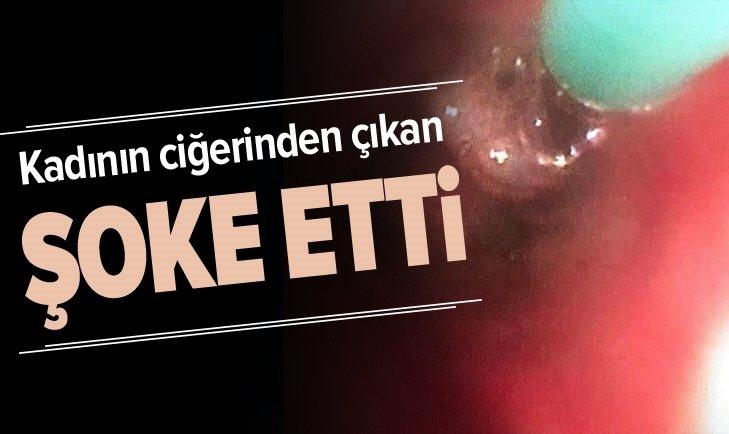 KADININ CİĞERİNDEN ÇIKAN ŞOKE ETTİ!