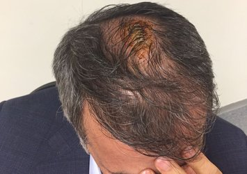 Şenol Güneş'in kafasına 5 dikiş atıldı!