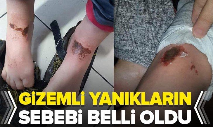 'GİZEMLİ YANIKLAR'IN SEBEBİ BELLİ OLDU!