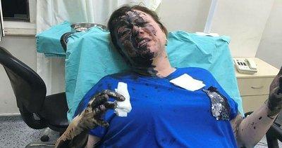 Adana'da kadını dövüp üstüne siyah sıvı döktüler! Ne olduğu araştırılıyor