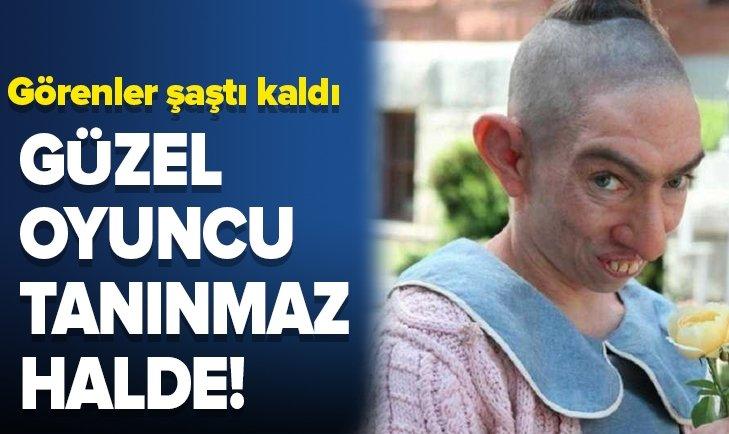 GÜZEL OYUNCU TANINMAZ HALE GELDİ!