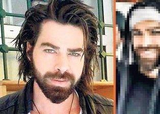 Gamze Özçelik'in eşi Uğur Pektaş'ın son hali sosyal medyayı salladı!