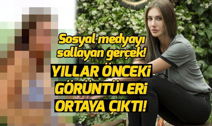 ŞEYMA SUBAŞI'NIN YILLAR ÖNCEKİ HALİ ORTAYA ÇIKTI! SOSYAL MEDYAYI SALLADI!